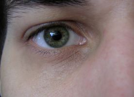 """my right eye """"untouched"""" by Psychicbard"""