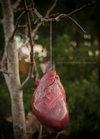 ventricle pulling by bruised--vein