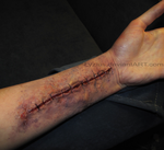 Sutures by PlaceboFX