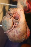 Denver Museum Anatomy Heart 238 by Falln-Stock