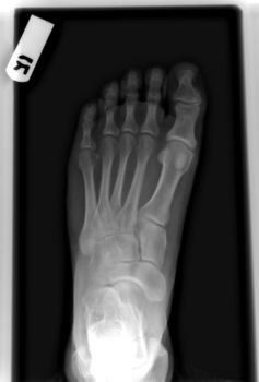 Right Foot X-Ray 1 of 3 by dull-stock