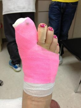 Pink-bandage-a-green-pin1 by FootFetishGuy1961