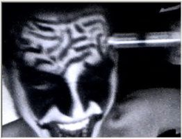 Brain Surgery Take 2 by imgod5552666