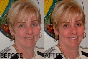 My Aunt Before and After by J4MESG