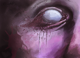 Eye infection by sugarpolyp