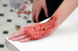 Burnt hand by Freakmo-SFX