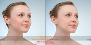 Retouch - Before And After by M-MooG
