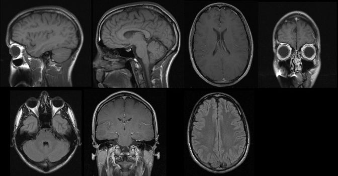 MRI Brain Scan - Medical by Archangelical-Stock