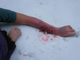 Decomposing body in the snow by CurlyZombie
