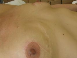 After nipple coloring 2 by madamelazonga