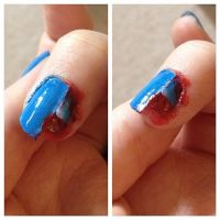 Ripped up nail by Traumfressermon