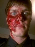 Burn Victim Makeup 2 by TheyCallMeWicked