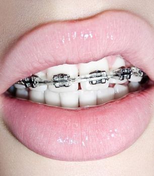 braces are girl's best friends by preThing